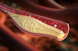 high cholesterol acupuncture