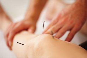 acupuncture for knee pain near me
