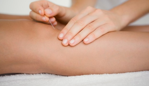 acupuncture for sports injuries near me