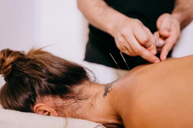 acupuncture and acne Irvine