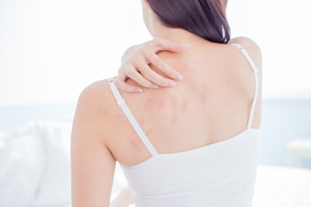 acupuncture for rashes Irvine