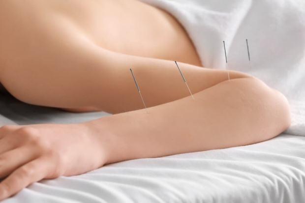 acupuncture vertigo Irvine