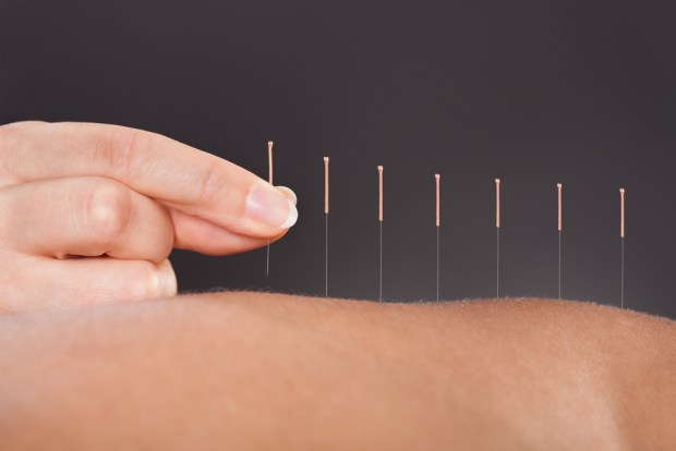 Acupuncture For Auto Injuries