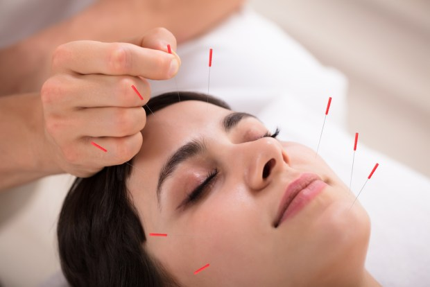 Acupuncture For Bell's Palsy