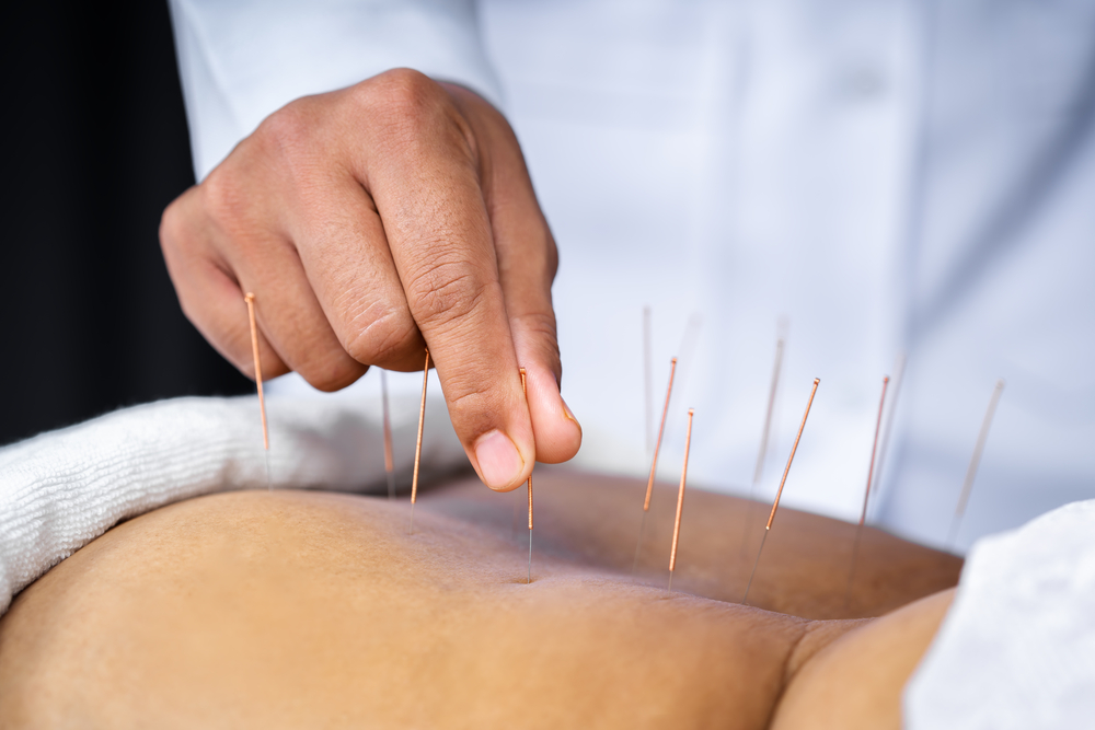 Acupuncture For Workers Comp