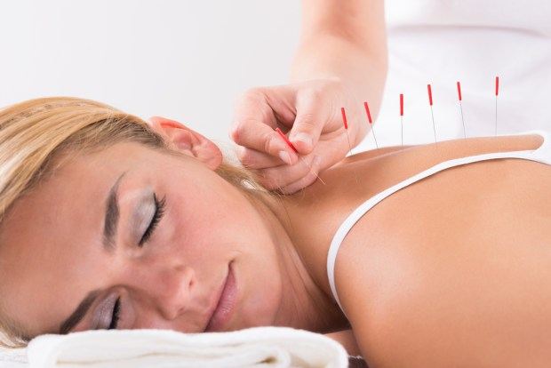 Acupuncture for Fertility / Infertility