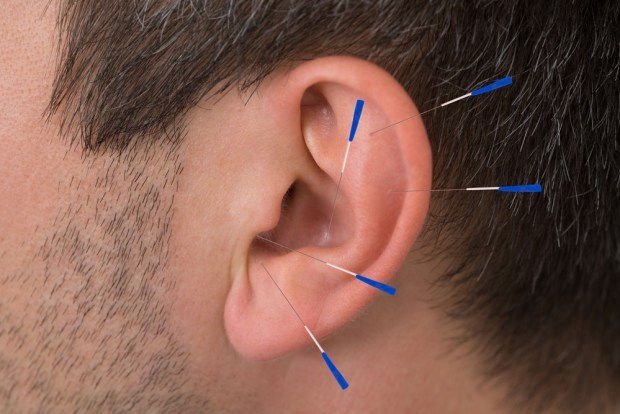 Acupuncture for Headache and Migraines