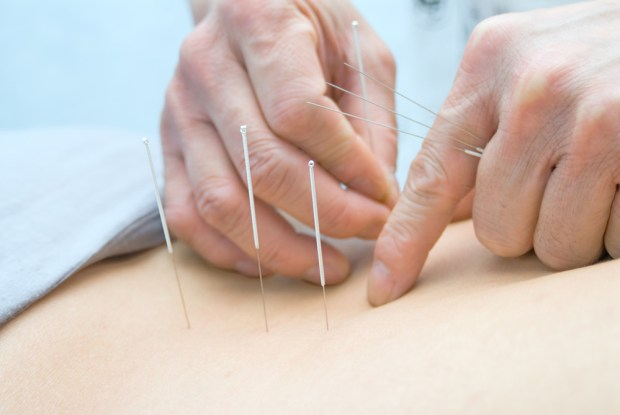 Acupuncture For Hives (Urticaria)