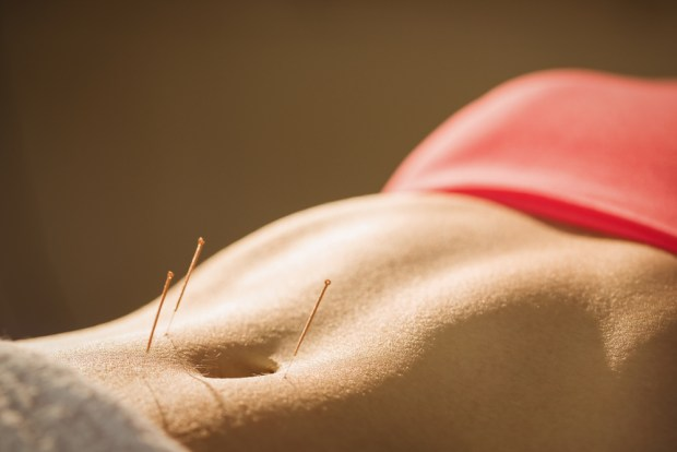 Acupuncture for Period Pain