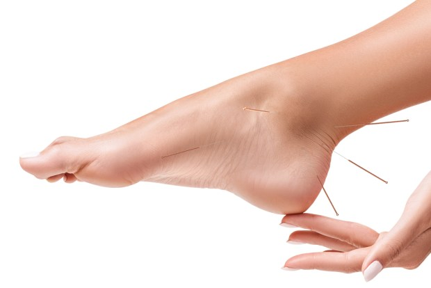 Acupuncture for Sport Injuries