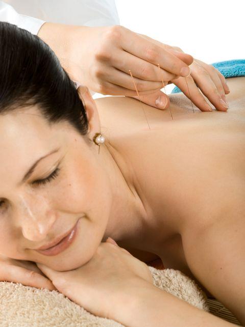 Acupuncture FAQs