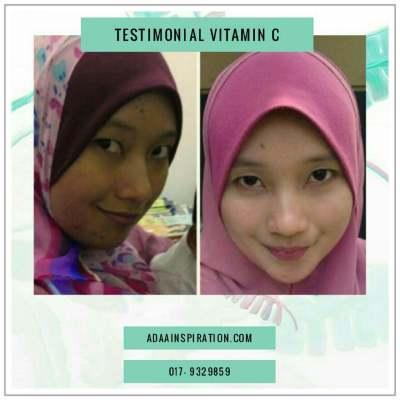 Testimonial Vitamin C Shaklee (60)