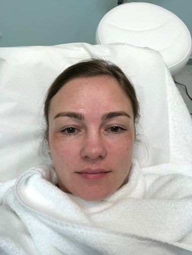 After Treatment