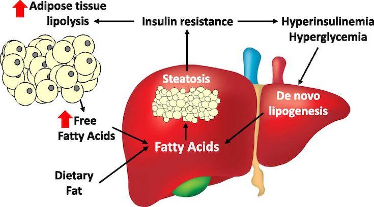 De Novo Lipogenesis by increased insulin