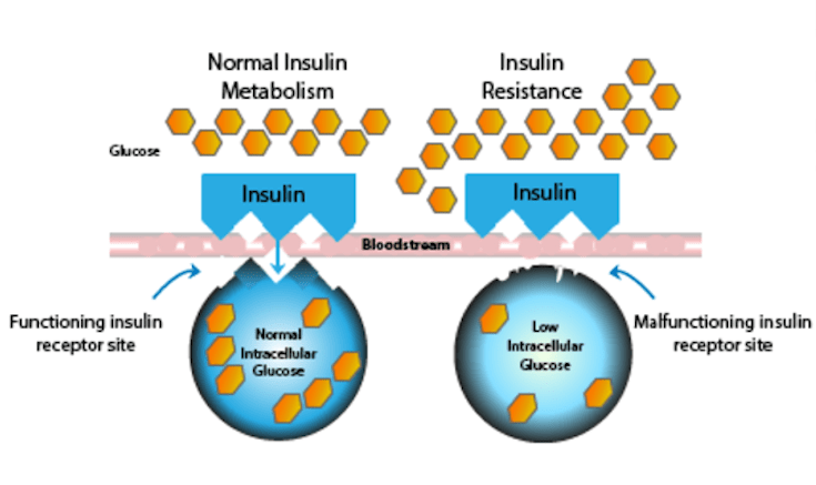 The Lock-And-Key Insulin Resistance Model