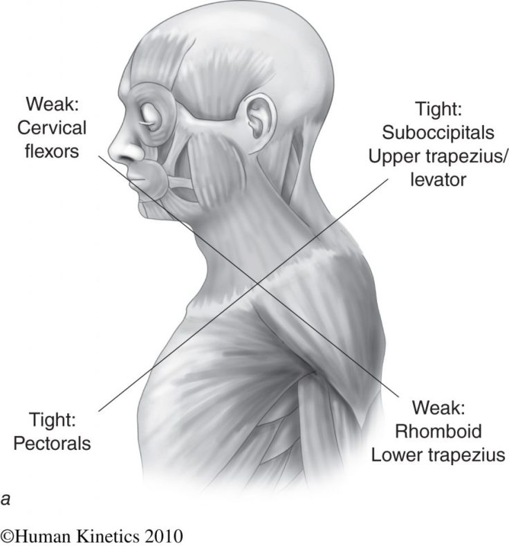 Upper-Crossed Syndrome