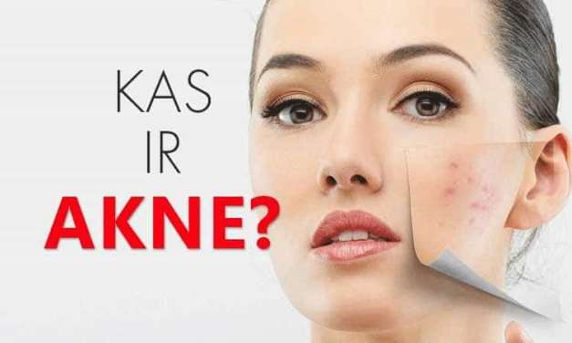 Pinnes jeb akne: iemesli, kopšana un ārstēšanas iespējas.