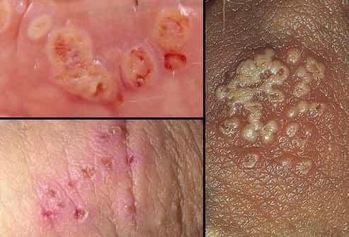 ģenitālais herpess