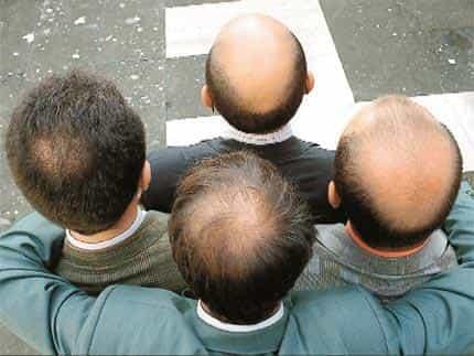 Dabiska aina vīriešu androgēnās alopēcijas variācijas sabiedrībā