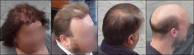Matu izskrišanas pakāpes. Androgēnās alopēcijas slimības smagums variē no vieglas formas- matu biezuma samazināšanās līdz totālai plikpaurībai.
