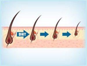 Vīrišķo hormonu ietekme uz matu biezumu.