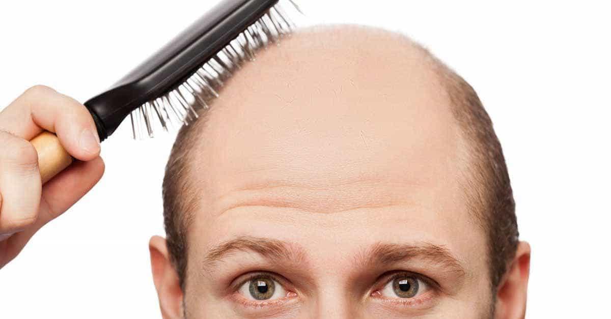 Matu izkrišana: diagnostika un ārstēšana