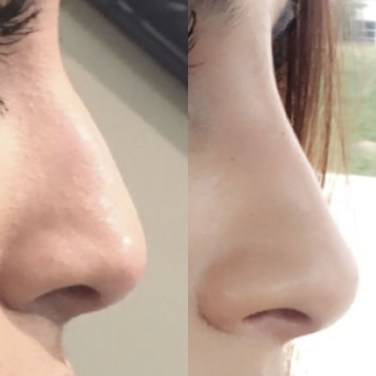 Cute Nose Makeup Ideas For This Year29