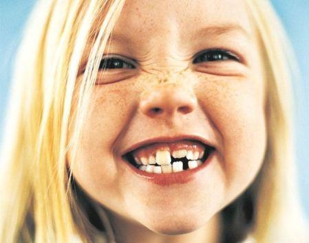 sonrisa-niño