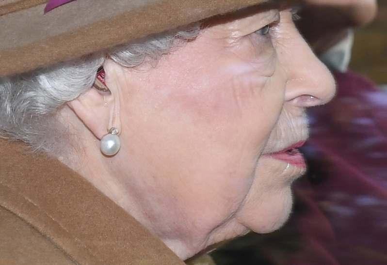 Kronprinzessin Victoria & Co: An diesen Krankheiten leiden die Royals