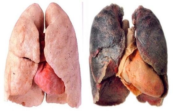 Το θαυματουργό σιρόπι που καθαρίζει τους πνεύμονες των καπνιστών!