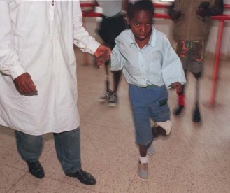 9 year old Vitorino Chilor is assisted by a member of the staff at the Huambo Orthopedic centre, Tuesday Febrary 17, 1998, as he tires out his new leg for the first time. Vitorino is one of 90 000 angolans who have been maimed by land mines.(AP Photo/Adil Bradlow)