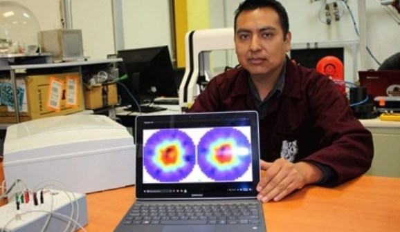 Estudiante del IPN construyó prototipo no invasivo para prediagnosticar a pacientes que padecen osteoporosis (19:00 h)