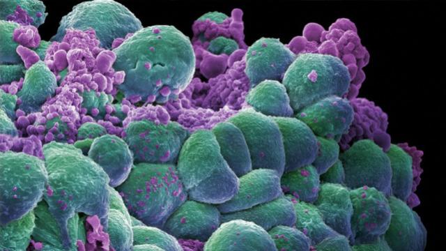 El uso de viagra puede curar un tipo de cáncer