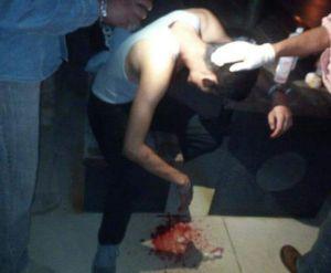 trabajador lesionado