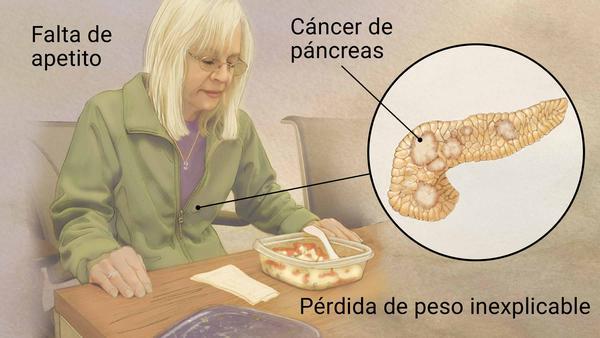 Cáncer de Páncreas: Tabaco y alcohol, grandes factores de riesgo