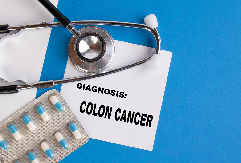 Cáncer de colon: el 90% de los casos se curan por un diagnóstico a tiempo