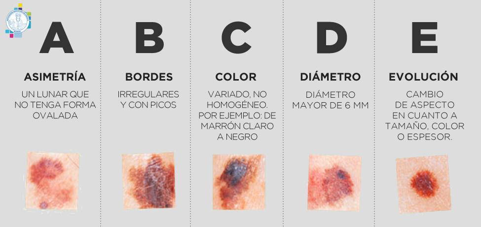 Melanoma: ¿Cómo es el cáncer de piel más agresivo?