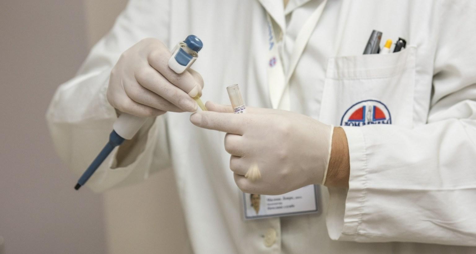Preocupa la reducción de testeos de VIH en un 40 % producto de la cuarentena