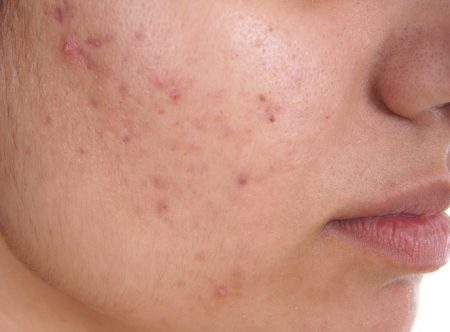 Hyperpigmentation, Laser and Chemical Peel Therapy