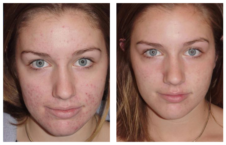 A chemical peel treatment, Benefits, Result, Candidate