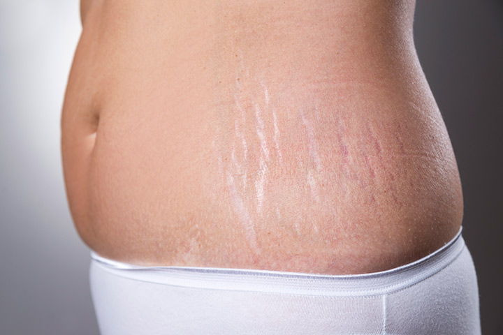 Pregnancy Stretch Marks Removal, Causes, Symptoms, and Treatment