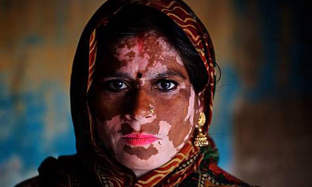 Vitiligo Treatment in Delhi