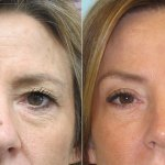 Brow Lift Treatment, Benefits, Candidates, And Procedure