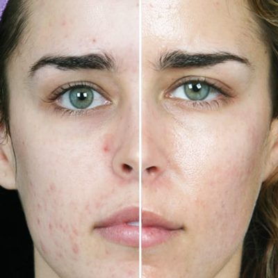 The Magical Hydra Facial Will Remove All Your Skin Disorder