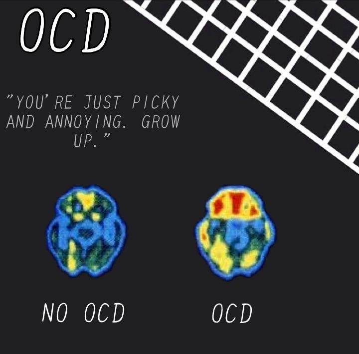 OCD Brain Scan