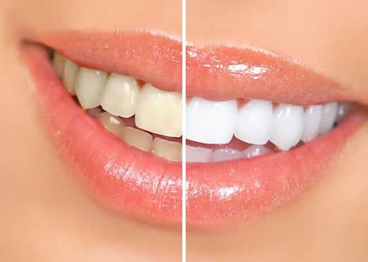 Receitas Caseiras Para Clarear Os Dentes Blog Da Adri