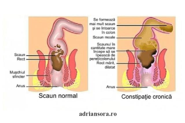 constipație cronică