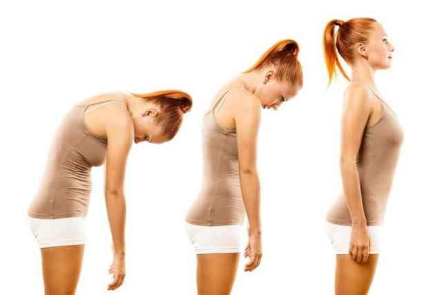 Cifoza este o deformare a coloanei vertebrale