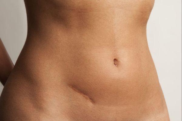 cicatrice-apendicita