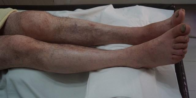 Calus vicios postfractură platou tibial extern genunchi stâng